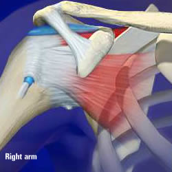anatomy-of-a-joint-shoulder