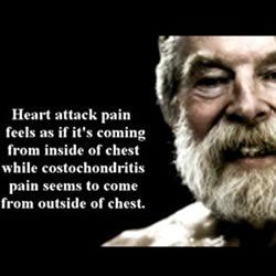 costochondritis