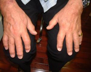 fingers-arthritis