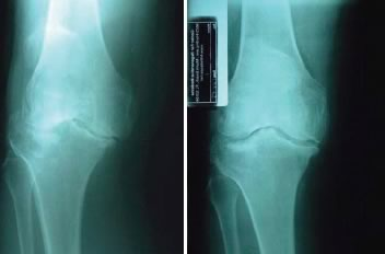 knee-diaries-advanced-osteoarthritis