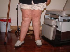 a-case-of-knock-knees-or-genu-valgum