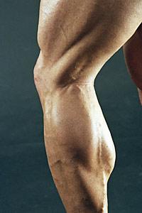 lower-extremities-strength-training-slows-knee-osteoarthritis