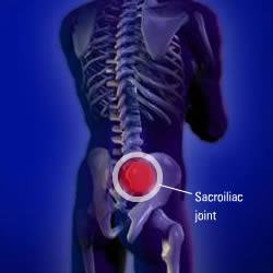 procedures-sisacroiliac-injection