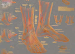 relationship-between-trauma-and-arthritis-in-the-ankle