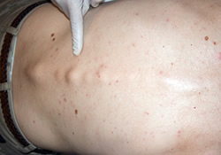 ankylosing-spodylitis