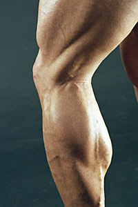 lower-extremities-strength-training-slows-knee-osteoarthritis
