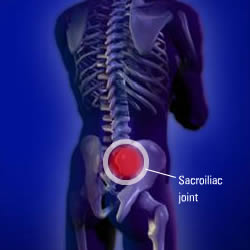 procedures-sisacroiliac-injection