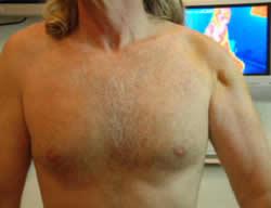 atrophy-of-shoulder-muscle